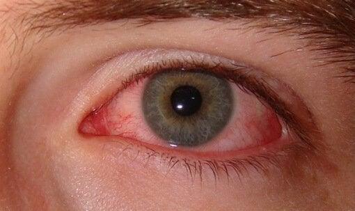 rougissement oculaire