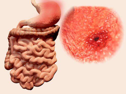causes des flatulences : ulcères et parasites