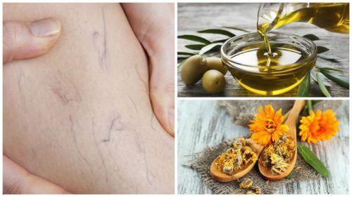Réduire les varices avec un traitement à l'huile d'olive et calendula