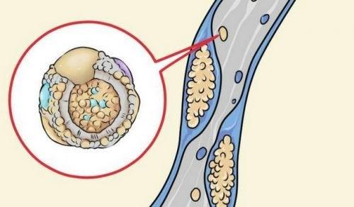 6 stratégies pour réduire la consommation de cholestérol en cuisinant