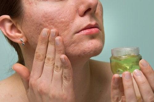 Solutions naturelles pour atténuer les cicatrices