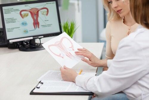 Le syndrome de l'ovaire polykystique