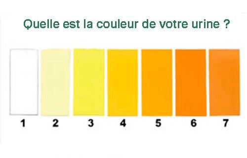 Différentes couleurs de votre urine.