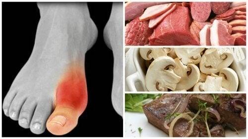 Vous souffrez de goutte ? Voici les 8 aliments que vous devez éviter