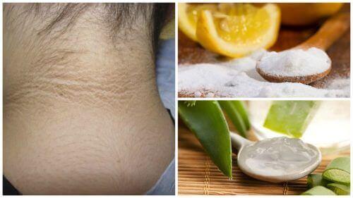 5 traitements pour éclaircir la peau sombre du cou