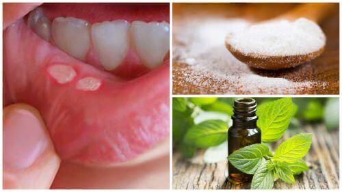 7 traitements maison pour soigner les plaies buccales