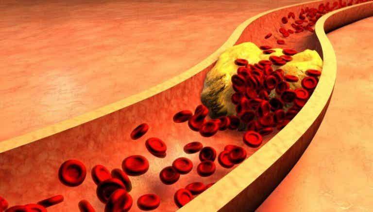 9 aliments pour améliorer votre santé artérielle