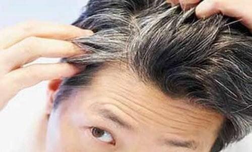 vitamine cheveux blanc