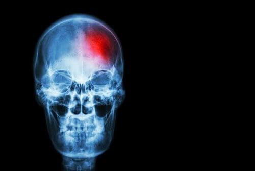 Peut-on prévenir un accident vasculaire cérébral ?