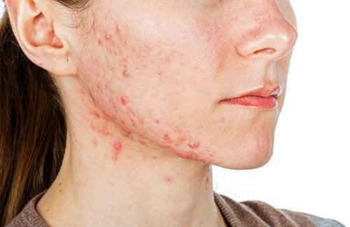 Traitements internes pour combattre l'acné