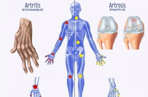 Quelques différences entre l'arthrose, l'arthrite et l'ostéoporose à connaître