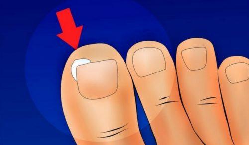 Comment éviter que les ongles s'incarnent