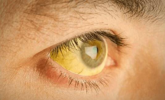 symptômes du foie chargé en toxines : jaunisse