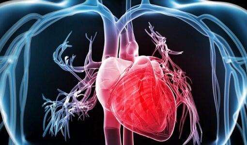 Souffrir d'un arrêt cardiaque.