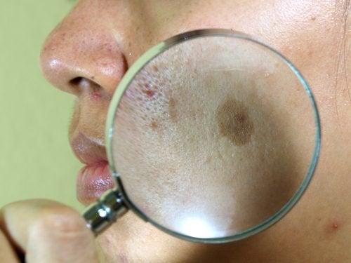 7 traitements naturels contre les taches du visage