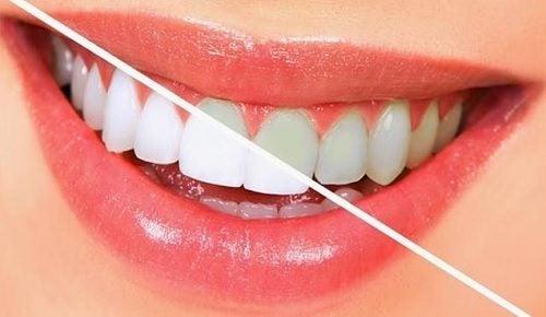 10 aliments pour blanchir les dents naturellement
