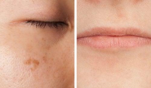 5 symptômes du manque de vitamines que l'on peut lire sur le visage