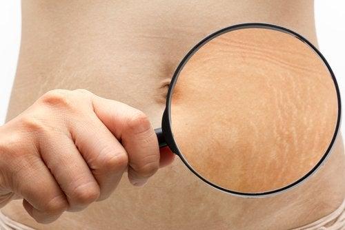 6 astuces pour améliorer l'aspect de vos vergetures