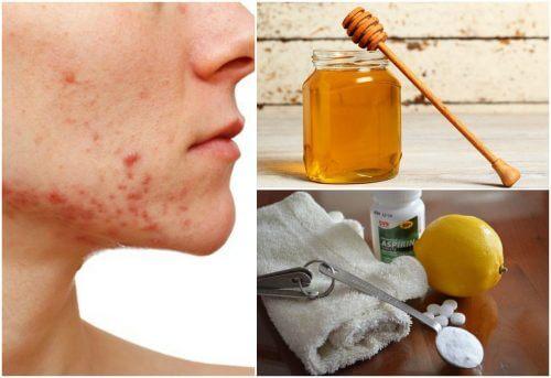 6 remèdes naturels pour faire face à l'acné kystique