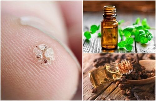 7 huiles essentielles pour combattre les verrues