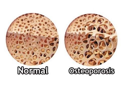 Comment contrôler l'ostéoporose pendant la ménopause