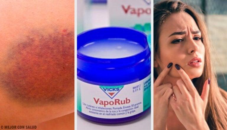 Saviez-vous que le VapoRub peut atténuer l'acné ?