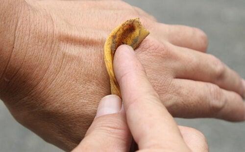 remède avec peaux de banane contre les verrues
