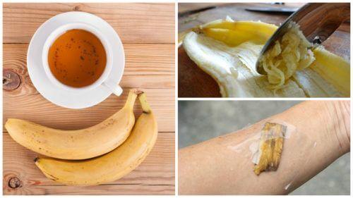 5 façons d'utiliser les peaux de banane comme remède naturel