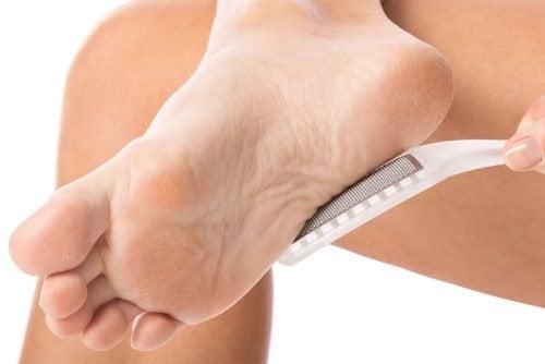 Comment enlever naturellement les cors aux pieds