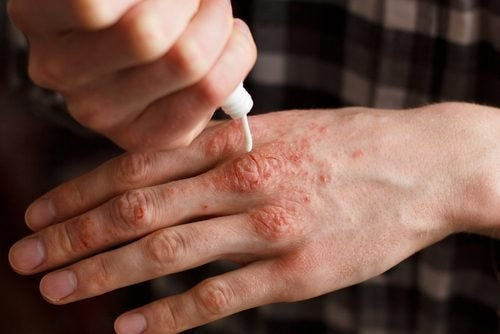 6 crèmes naturelles pour traiter le psoriasis