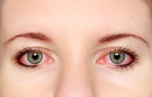 symptômes du stress visuel : conjonctivite