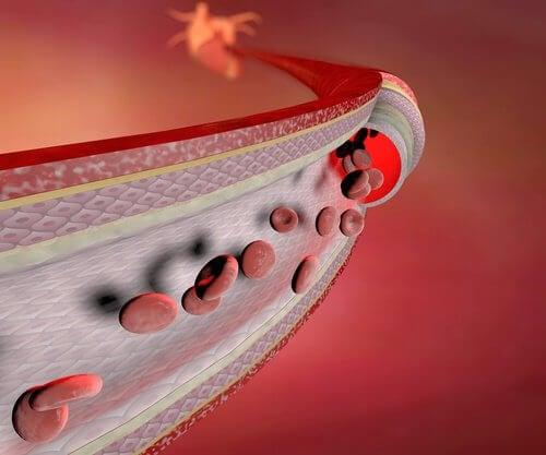 vaisseaux sanguins et influence sur les chevilles gonflées