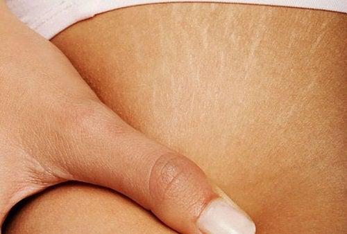 Traitements pour atténuer les vergetures sur la peau