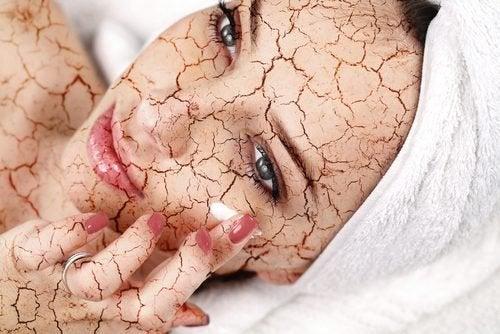 Comment réduire la sécheresse du visage