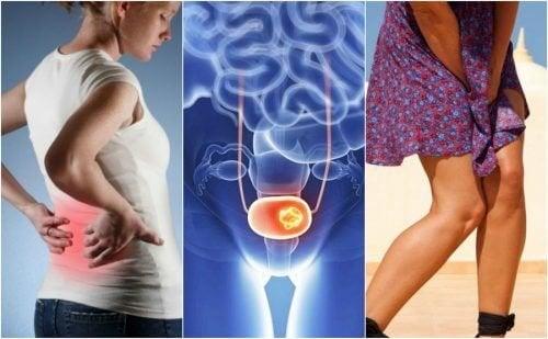 7 signes de cancer de la vessie que l'on ne doit pas ignorer