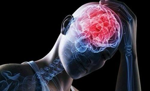 embolie cérébrale parmi les maladies vasculaires cérébrales