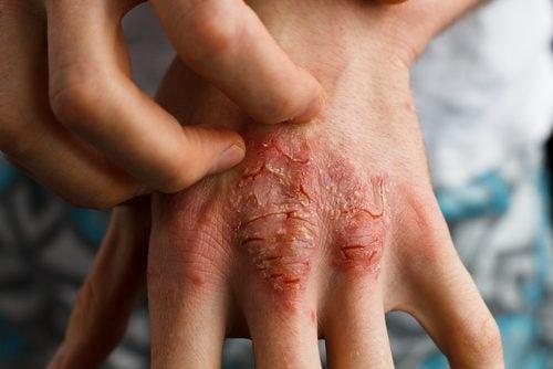 Traitement du psoriasis