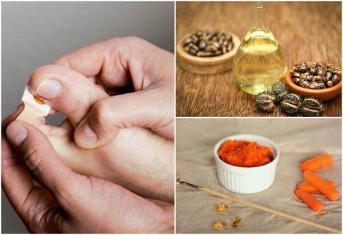 Eliminez les envies ongulaires avec ces 8 traitements naturels