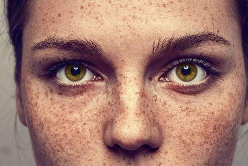 Laloès blanchit la peau