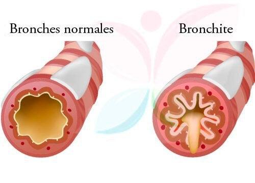 5 remèdes efficaces pour traiter la bronchite