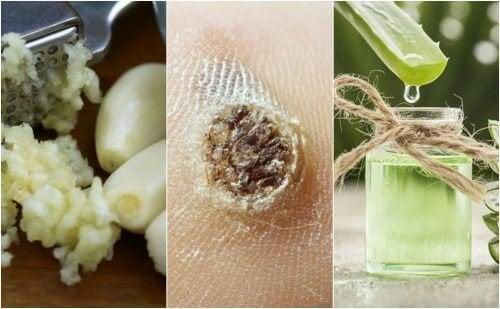 5 remèdes naturels pour traiter les verrues