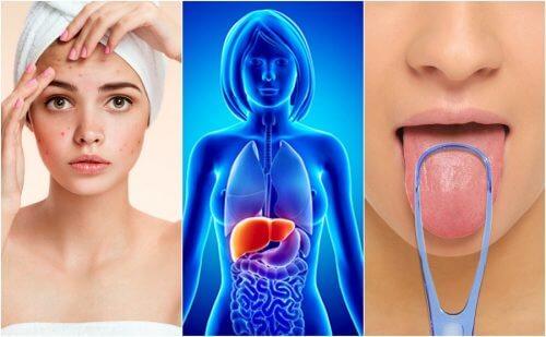 7 signes qui vous alertent sur une intoxication du foie