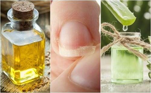 5 remèdes d'origine naturelle pour soulager les ongles cassés