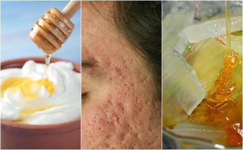 L'acné a laissé des marques sur votre visage ? Atténuez-les avec ces 5 masques naturels