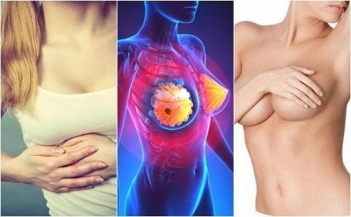 les symptômes du cancer du sein