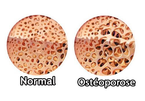 Ostéoporose et la maladie de Crohn.