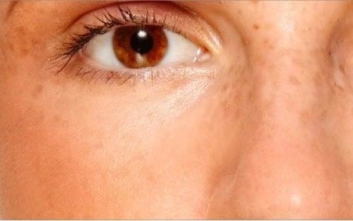 taches sur la peau en raison du syndrome des ovaires polykystiques