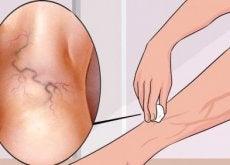 exercices pour traiter les varices