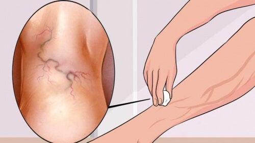 8 exercices pour traiter les varices