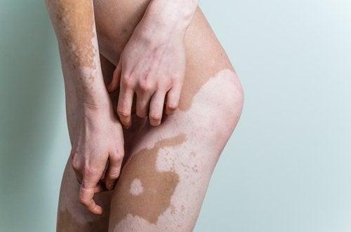 Qu'est-ce que le vitiligo ?
